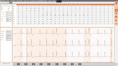 SW Cardioline Cubeholter WS - 1