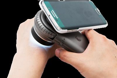 Rámeček pro připojení mobilního telefonu iPhone 11 Pro k dermatoskopům ILLUCO  - 1