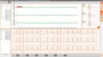 SW Cardioline Cubeholter WS - 3