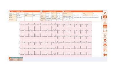 Přímopíšící EKG Cardioline ECG100L FULL - 4